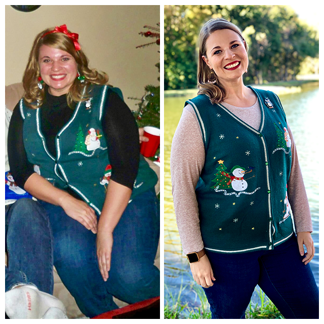 Picture: Before and After Losing 112lb of Weight