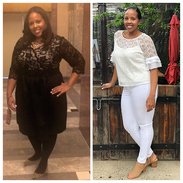 Picture: Before and After Losing 102lb of Weight